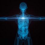 Ứng dụng của máy in 3D kim loại SLM trong y tế, nha khoa
